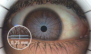 eyemed - Auto-Nibut