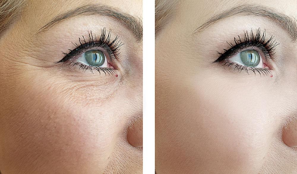 Eyemed - Botox-Behandlung Krähenfüße Falten vorher -nachher