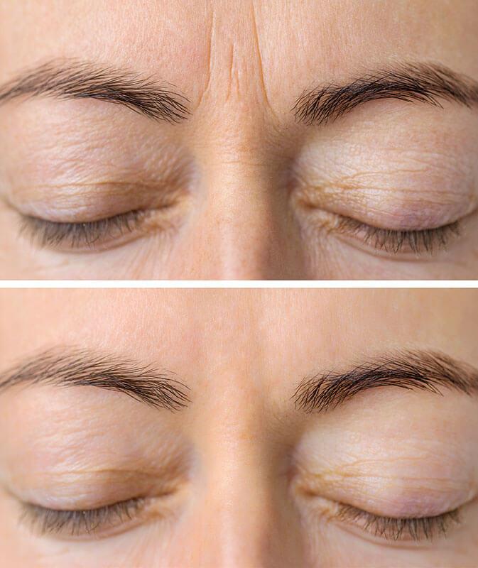 Eyemed - Botox-Behandlung Augenlider, Krähenfüße, Falten vorher -nachher